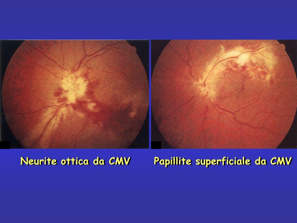 Neurite ottica da CMV Papillite superficiale da CMV