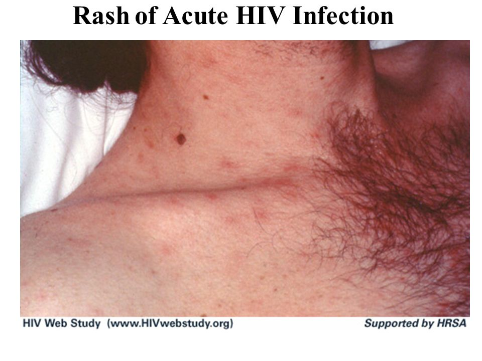 Rash of Acute HIV Infection