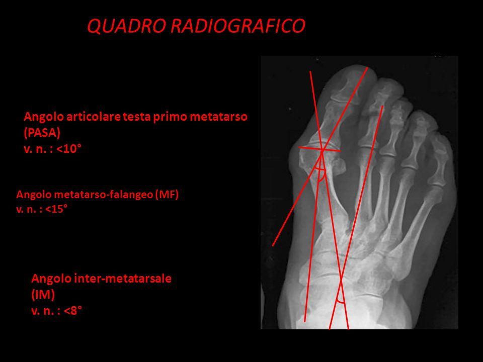 QUADRO RADIOGRAFICO Angolo articolare testa primo metatarso (PASA)