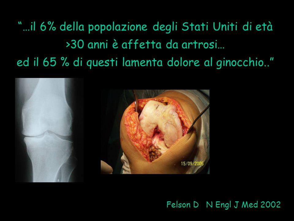 ed il 65 % di questi lamenta dolore al ginocchio..