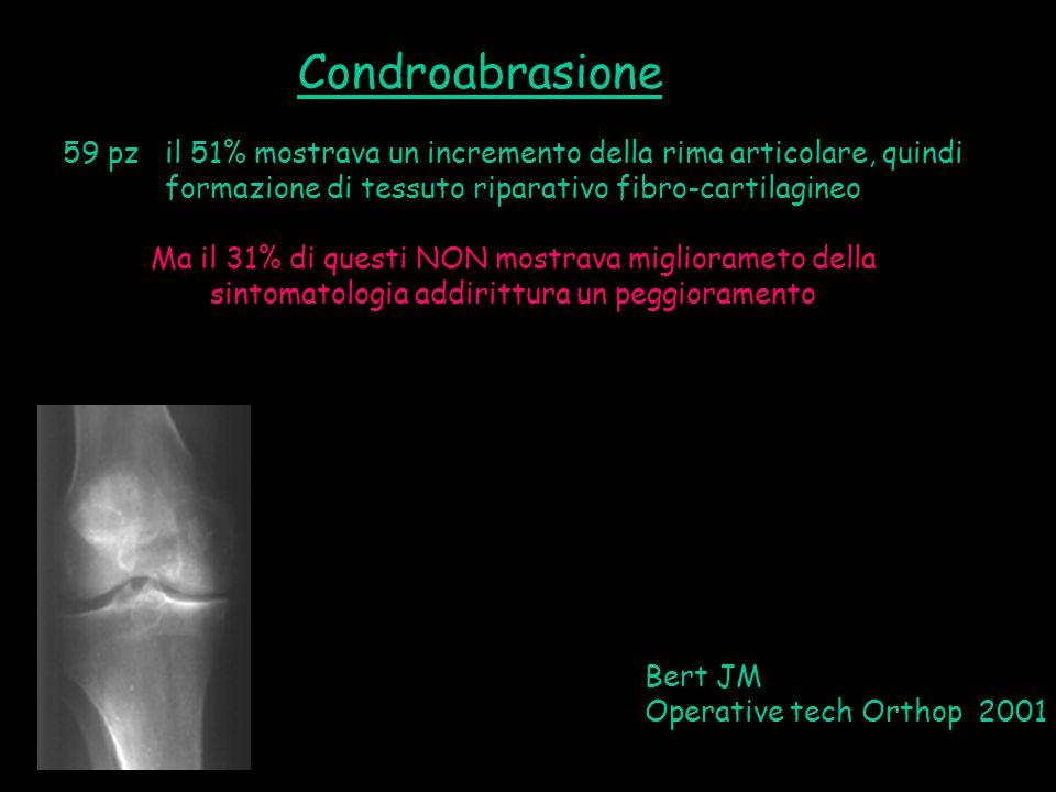 Condroabrasione 59 pz il 51% mostrava un incremento della rima articolare, quindi formazione di tessuto riparativo fibro-cartilagineo.