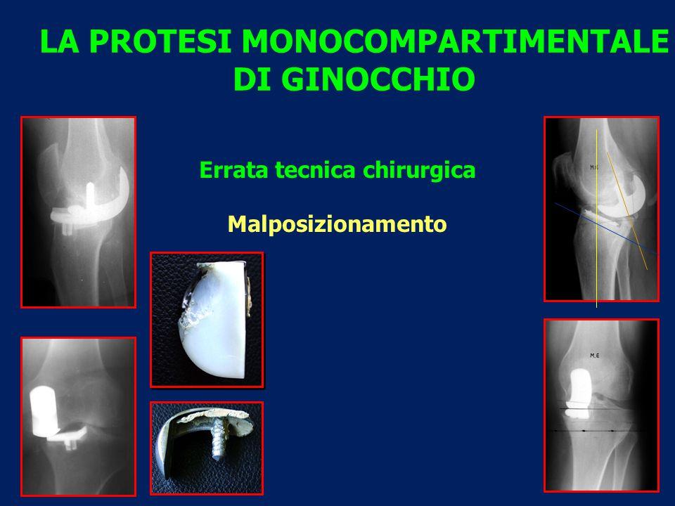 LA PROTESI MONOCOMPARTIMENTALE DI GINOCCHIO Errata tecnica chirurgica