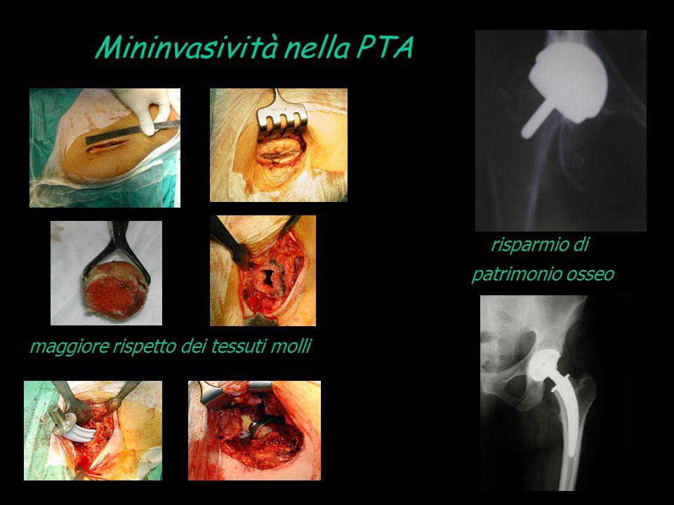 Mininvasività nella PTA