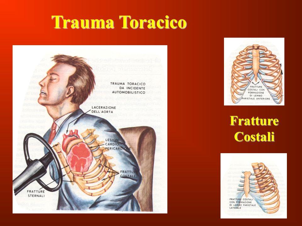Trauma Toracico Fratture Costali 107