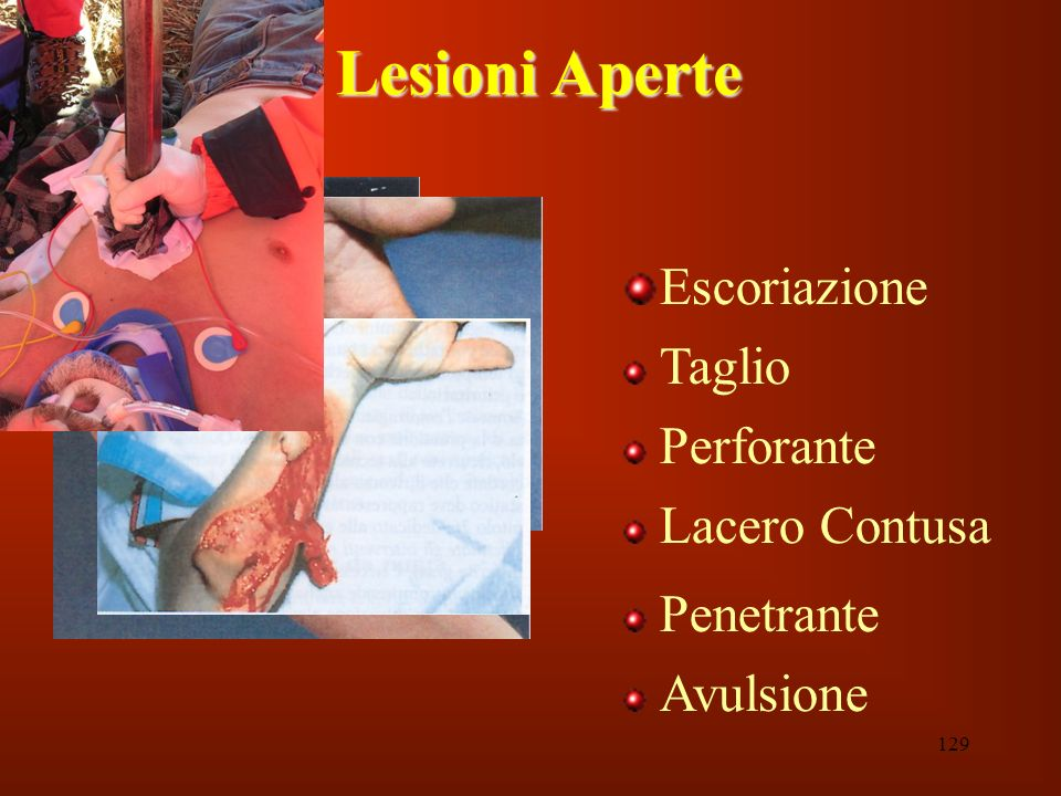 Lesioni Aperte Escoriazione Taglio Perforante Lacero Contusa