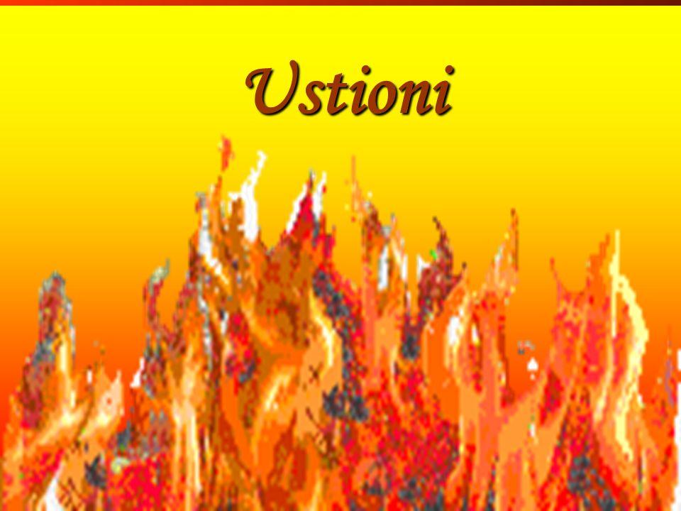 Ustioni Ustioni Inf. Sartor Valter 138