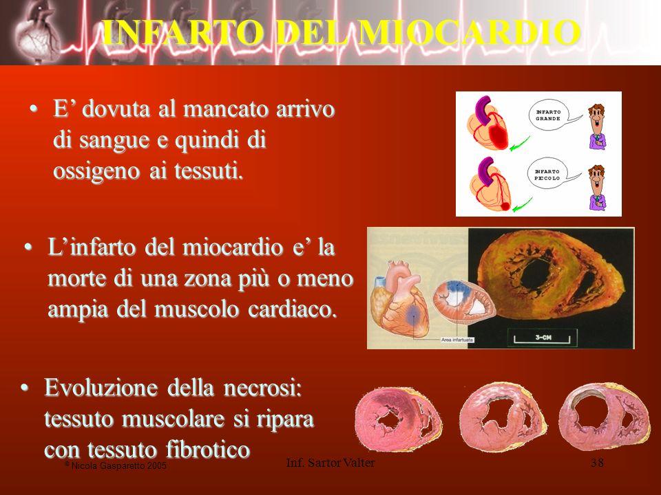 INFARTO DEL MIOCARDIO E' dovuta al mancato arrivo di sangue e quindi di ossigeno ai tessuti.