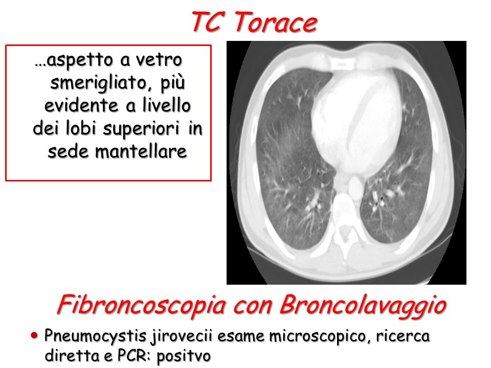 Fibroncoscopia con Broncolavaggio