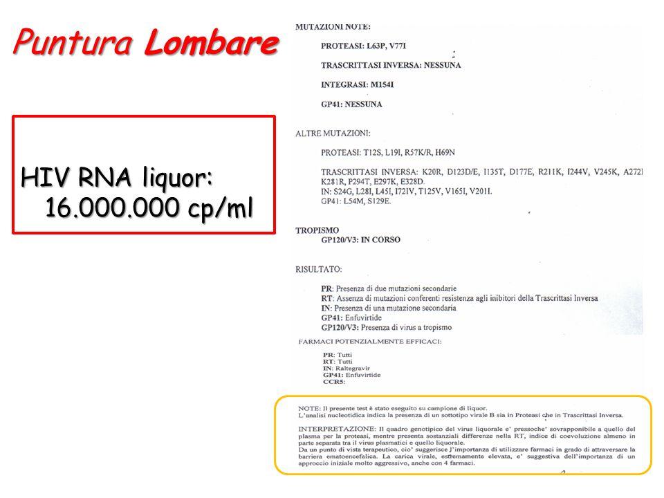 Puntura Lombare HIV RNA liquor: 16.000.000 cp/ml