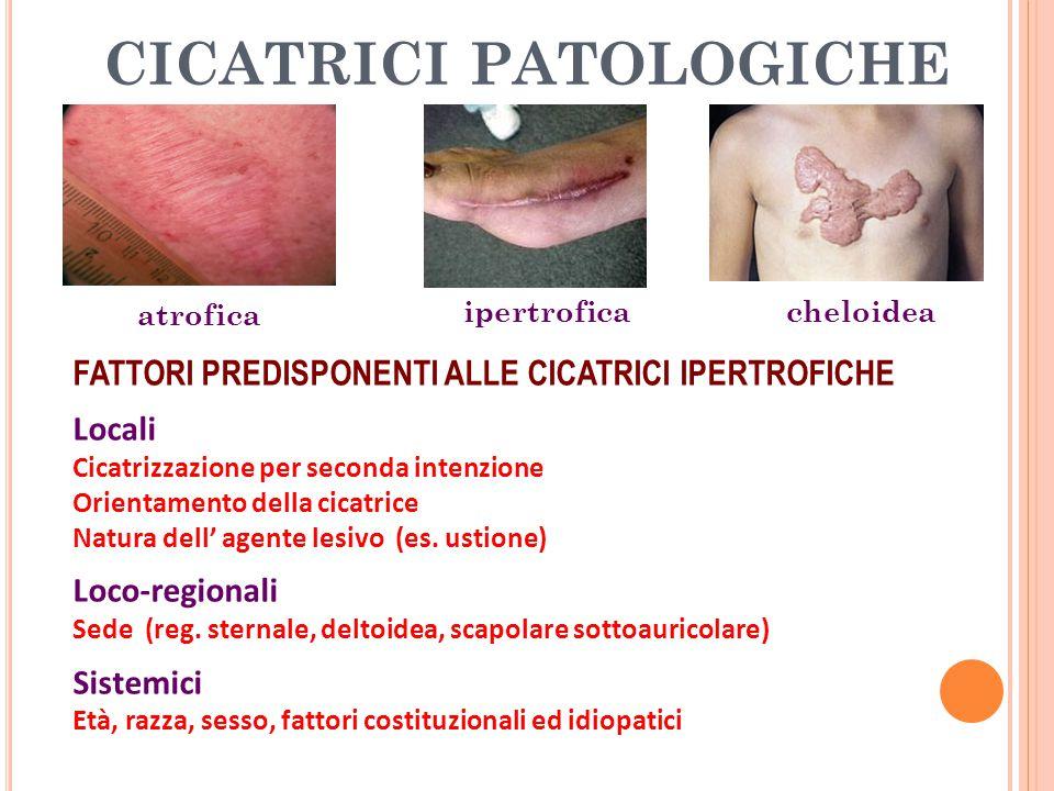 CICATRICI PATOLOGICHE