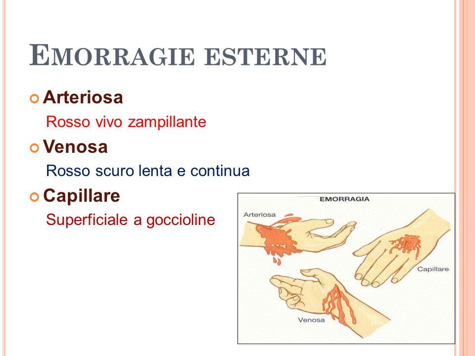 Emorragie esterne Arteriosa Venosa Capillare Rosso vivo zampillante