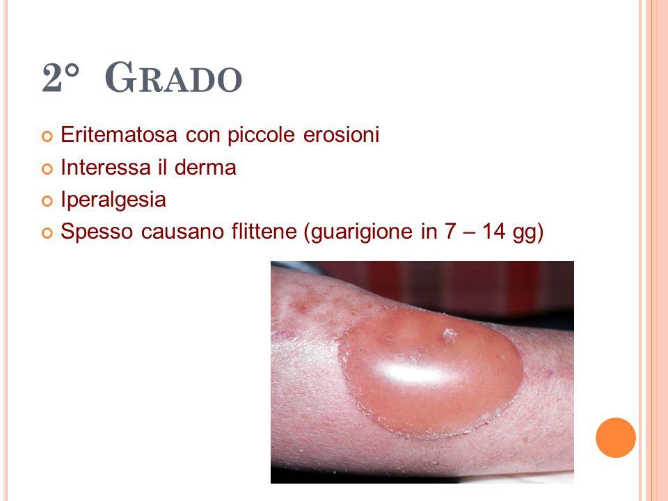 2° Grado Eritematosa con piccole erosioni Interessa il derma
