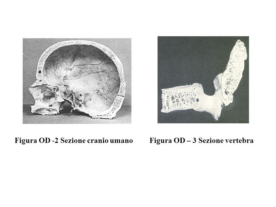 Figura OD -2 Sezione cranio umano
