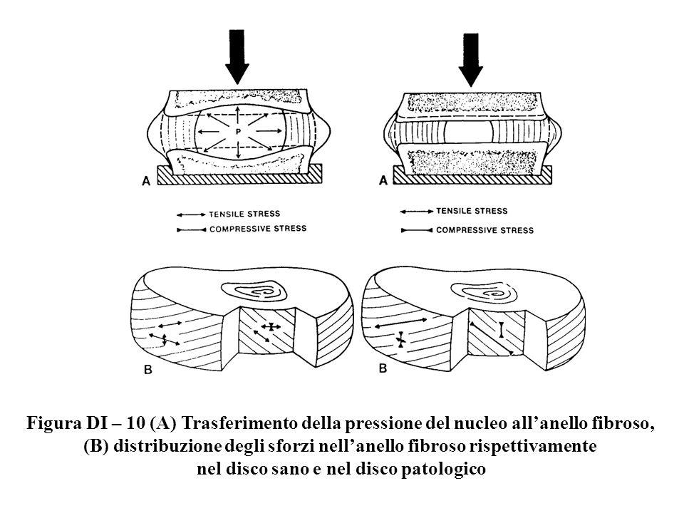 (B) distribuzione degli sforzi nell'anello fibroso rispettivamente