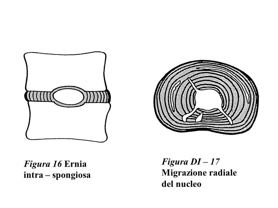 Figura DI – 17 Migrazione radiale del nucleo