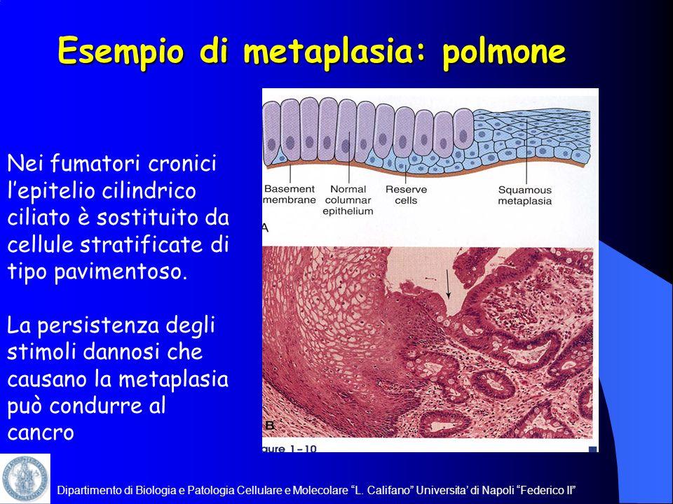 Esempio di metaplasia: polmone