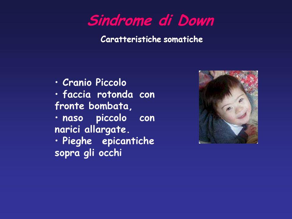 Sindrome di Down Cranio Piccolo faccia rotonda con fronte bombata,