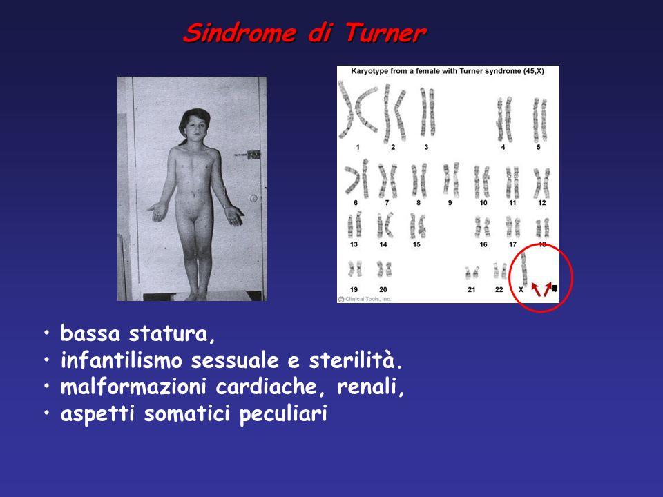 Sindrome di Turner bassa statura, infantilismo sessuale e sterilità.