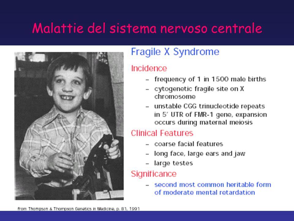 Malattie del sistema nervoso centrale
