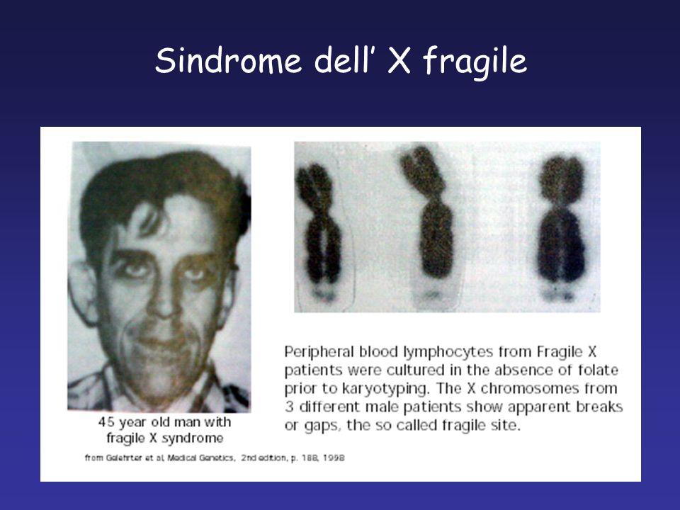 Sindrome dell' X fragile