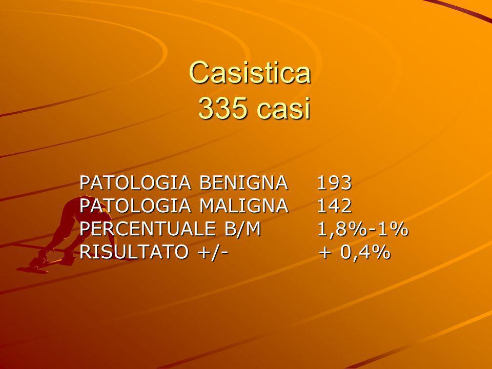 Casistica 335 casi PATOLOGIA BENIGNA 193 PATOLOGIA MALIGNA 142