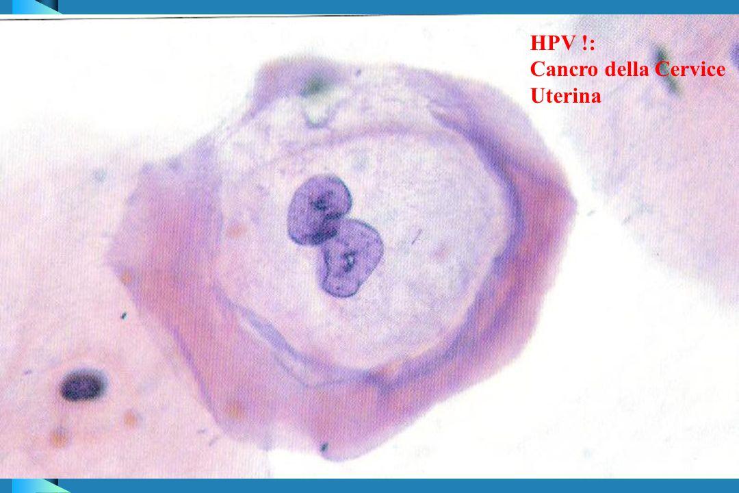 HPV !: Cancro della Cervice Uterina