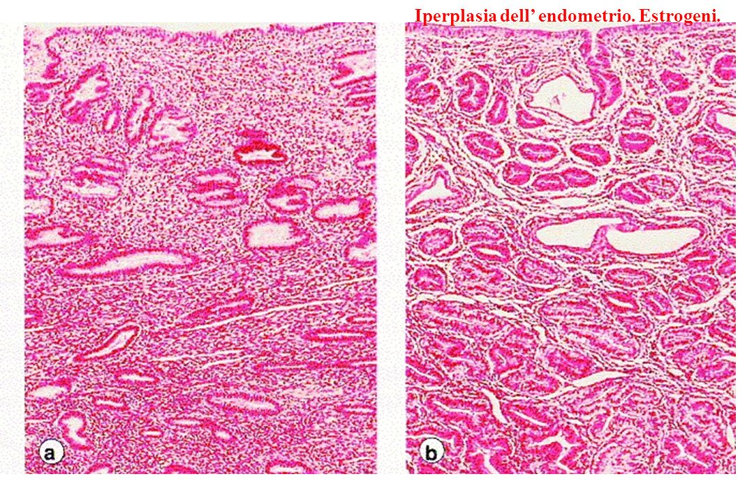 Iperplasia dell' endometrio. Estrogeni.