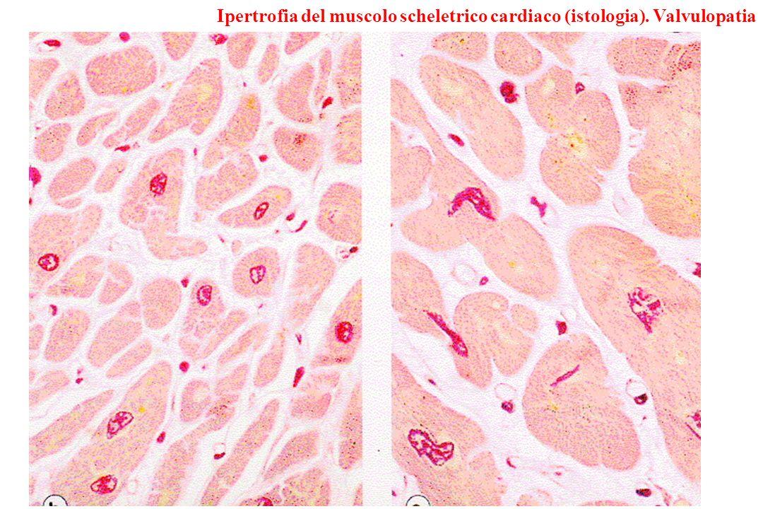 Ipertrofia del muscolo scheletrico cardiaco (istologia). Valvulopatia