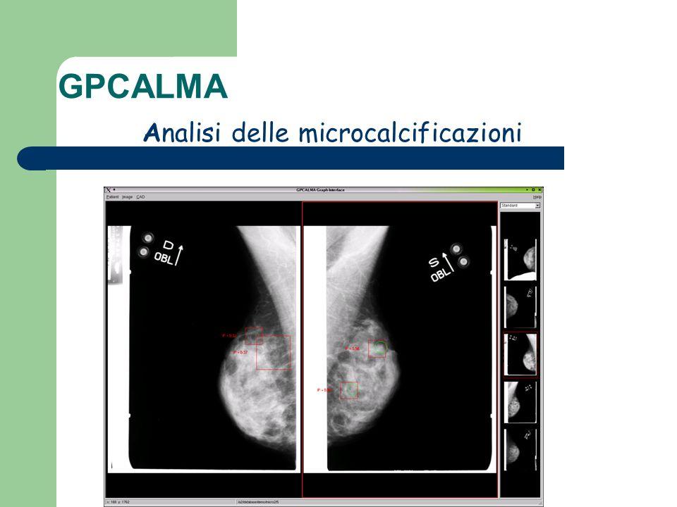 GPCALMA Analisi delle microcalcificazioni
