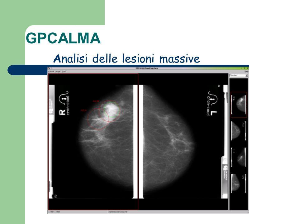 GPCALMA Analisi delle lesioni massive