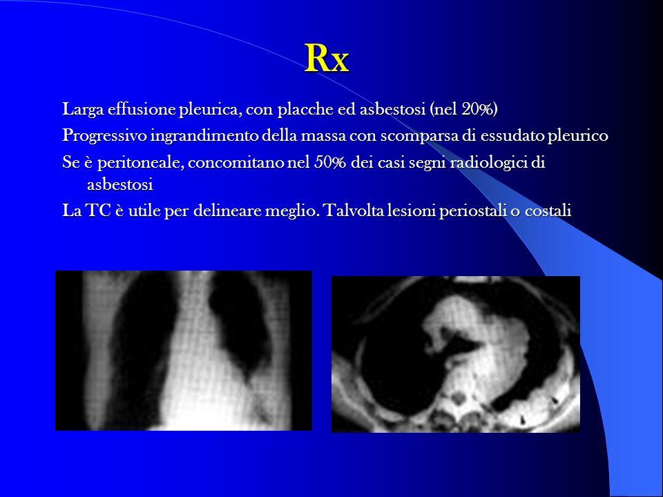 Rx Larga effusione pleurica, con placche ed asbestosi (nel 20%)