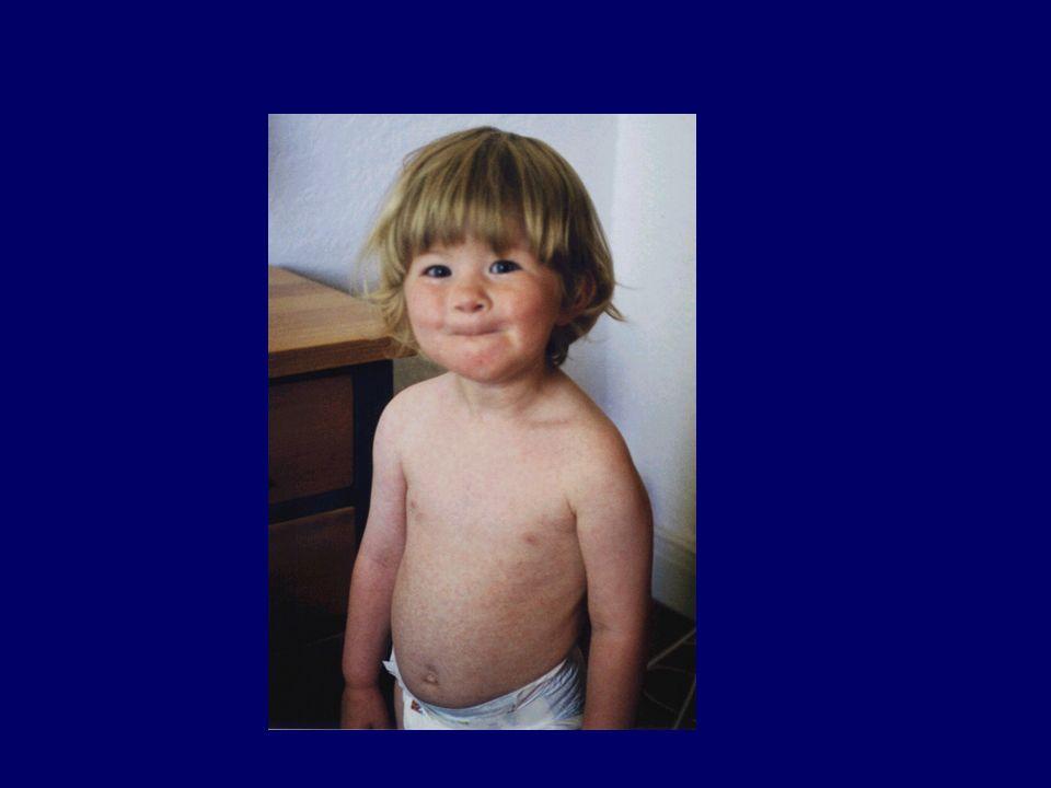 Il morbillo è una delle malattie infettive più contagiose, e in assenza di vaccinazione quasi tutti i bambini acquisiscono il morbillo entro i 15 anni d'età.