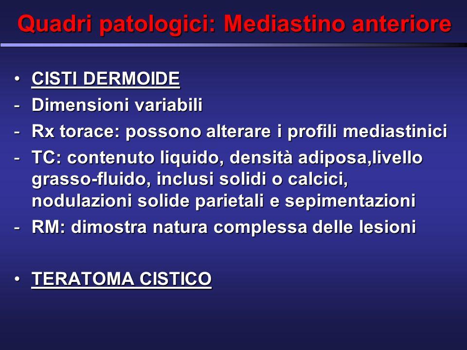 Quadri patologici: Mediastino anteriore