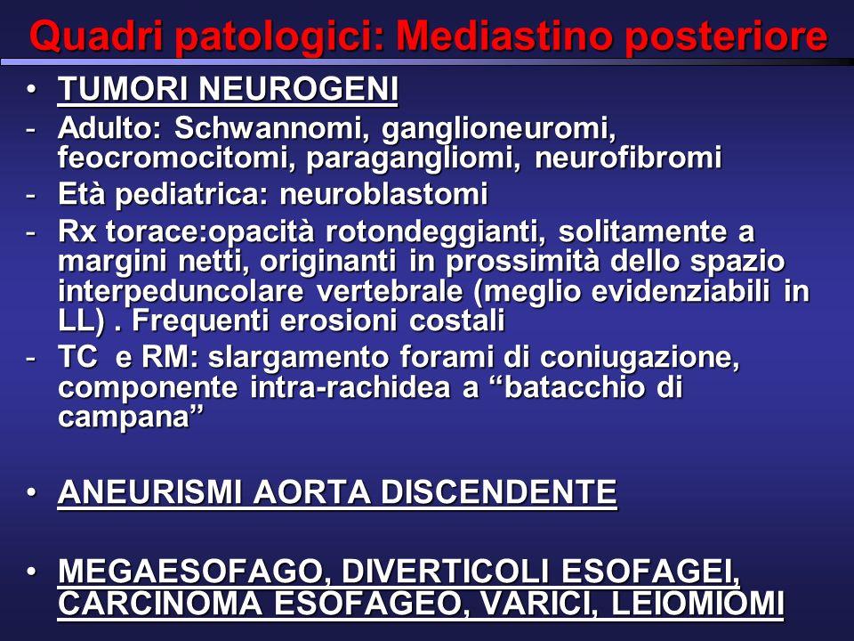 Quadri patologici: Mediastino posteriore