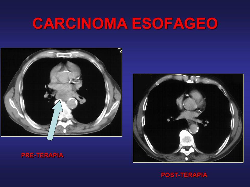 CARCINOMA ESOFAGEO PRE-TERAPIA POST-TERAPIA
