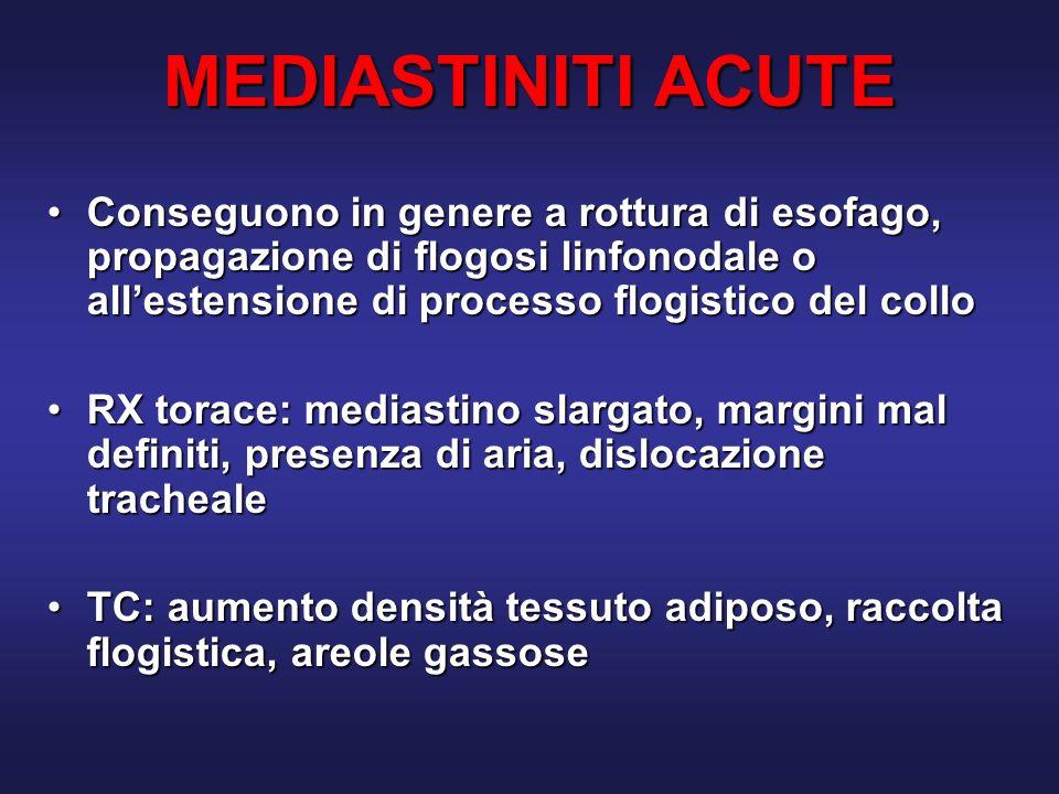 MEDIASTINITI ACUTE Conseguono in genere a rottura di esofago, propagazione di flogosi linfonodale o all'estensione di processo flogistico del collo.