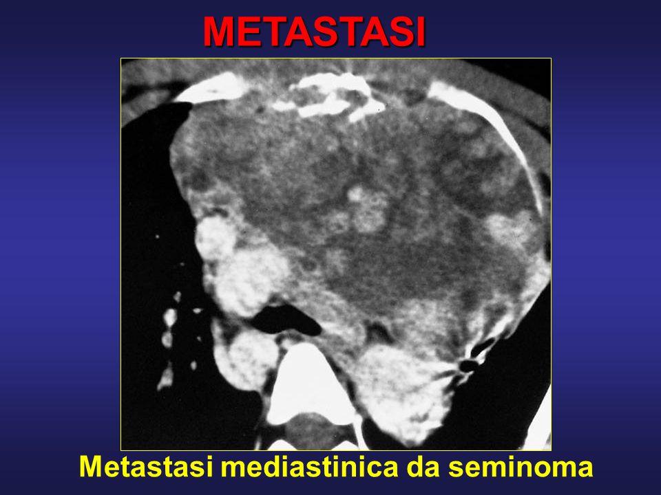 METASTASI Metastasi mediastinica da seminoma