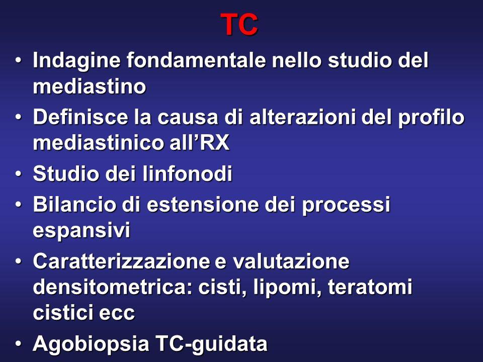 TC Indagine fondamentale nello studio del mediastino
