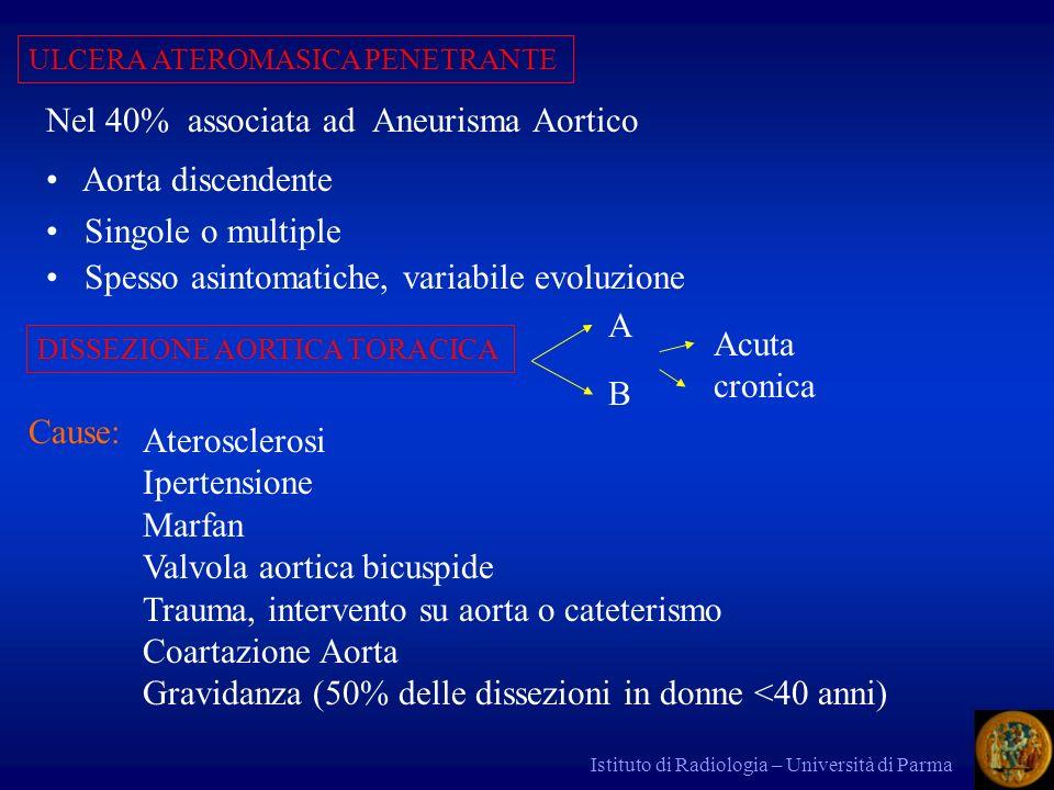 Nel 40% associata ad Aneurisma Aortico Aorta discendente