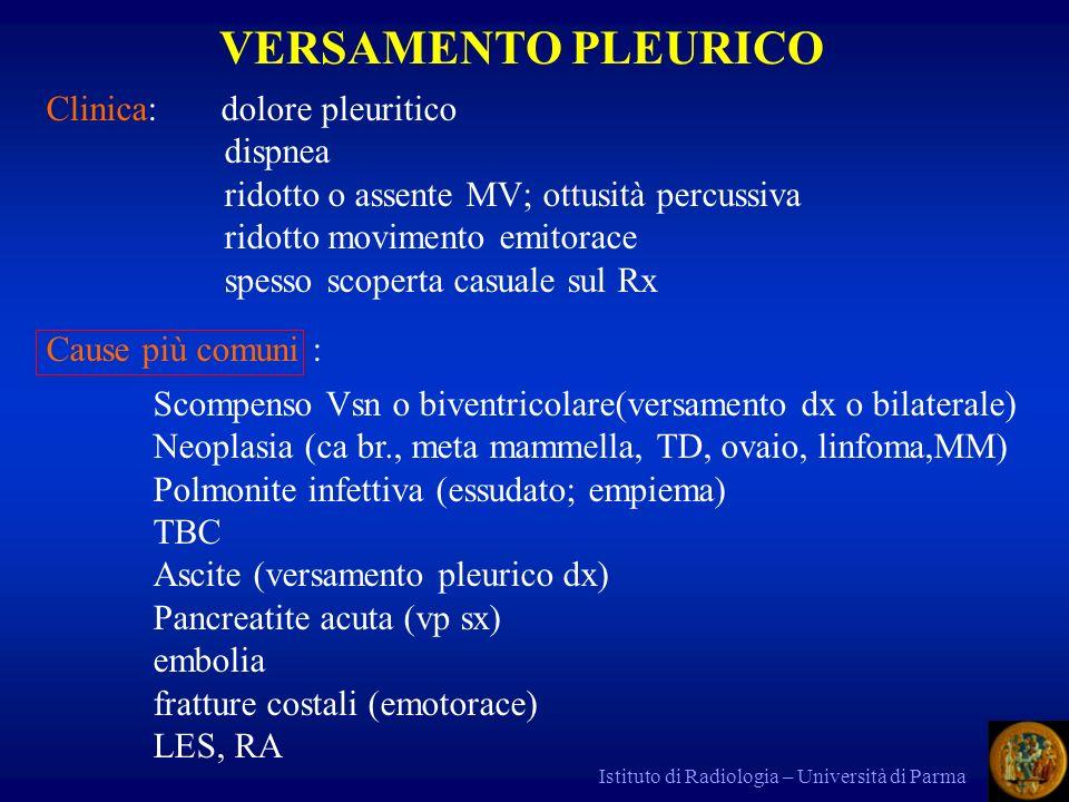 VERSAMENTO PLEURICO Clinica: dolore pleuritico dispnea