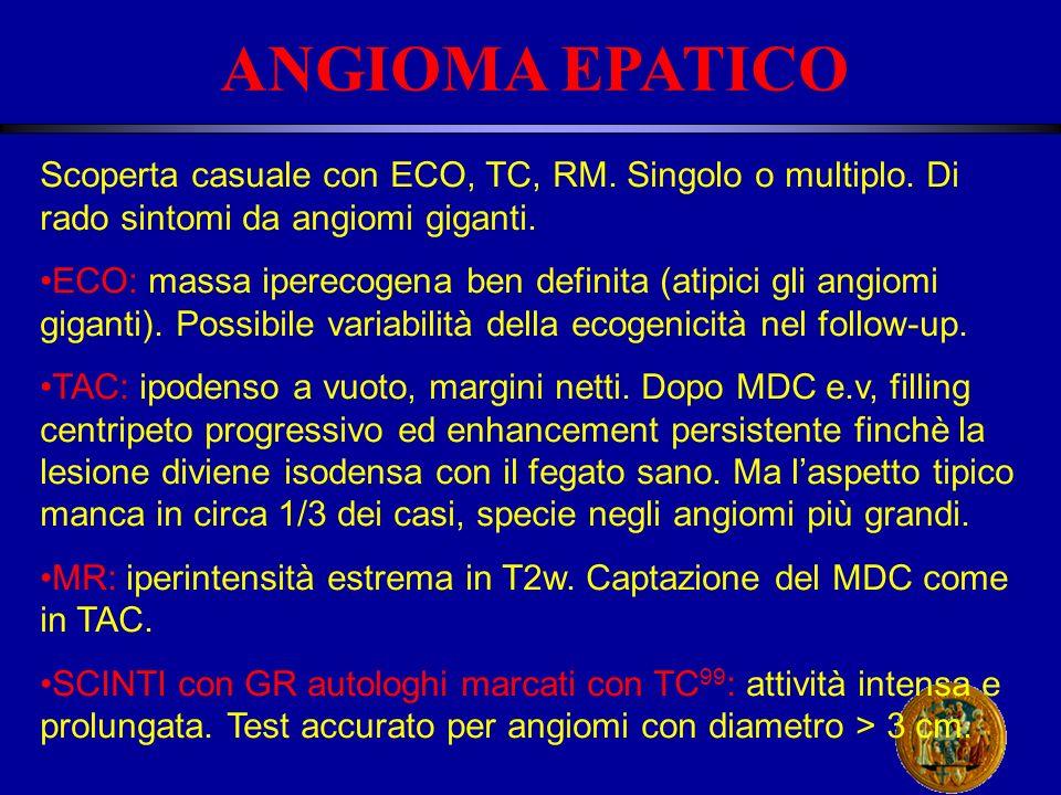 ANGIOMA EPATICO Scoperta casuale con ECO, TC, RM. Singolo o multiplo. Di rado sintomi da angiomi giganti.