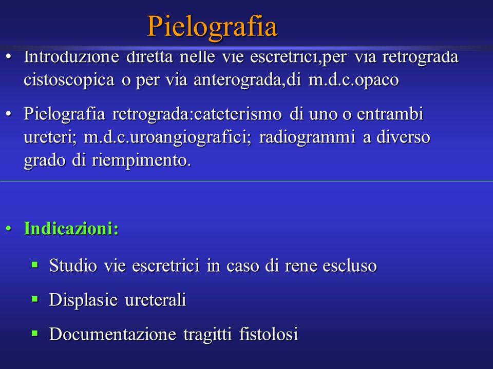 Pielografia Introduzione diretta nelle vie escretrici,per via retrograda cistoscopica o per via anterograda,di m.d.c.opaco.