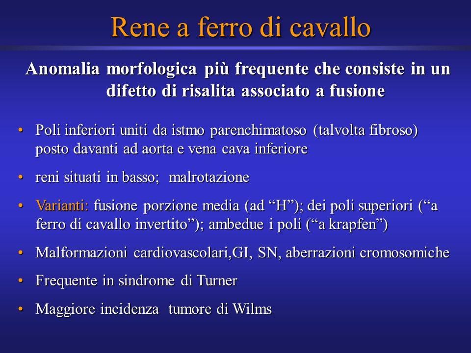 Rene a ferro di cavallo Anomalia morfologica più frequente che consiste in un difetto di risalita associato a fusione.