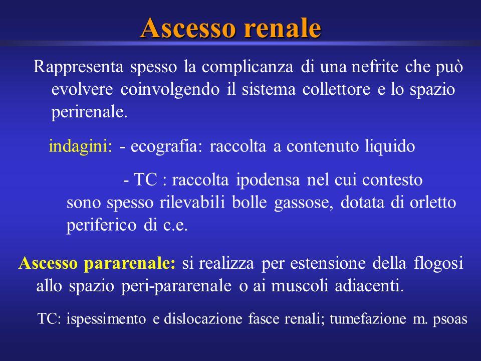 Ascesso renale Rappresenta spesso la complicanza di una nefrite che può evolvere coinvolgendo il sistema collettore e lo spazio perirenale.