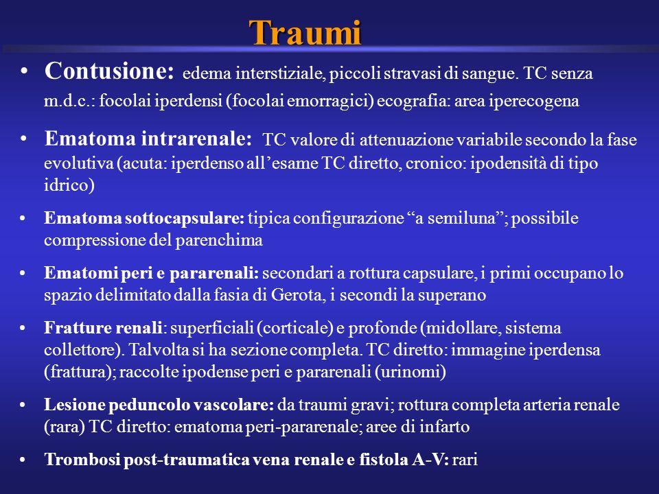 Traumi