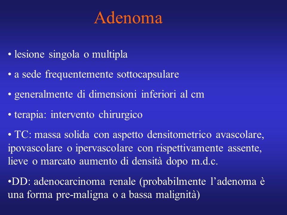 Adenoma lesione singola o multipla