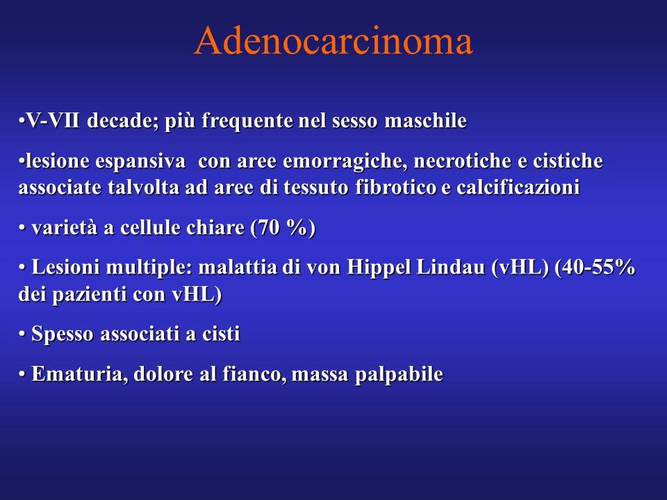 Adenocarcinoma V-VII decade; più frequente nel sesso maschile