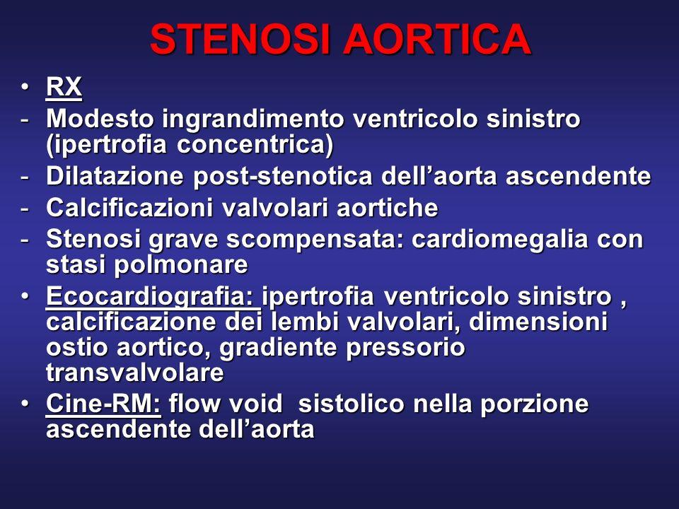 STENOSI AORTICA RX. Modesto ingrandimento ventricolo sinistro (ipertrofia concentrica) Dilatazione post-stenotica dell'aorta ascendente.