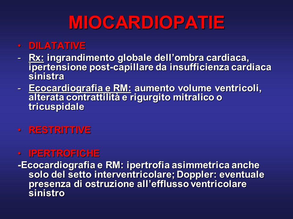 MIOCARDIOPATIE DILATATIVE