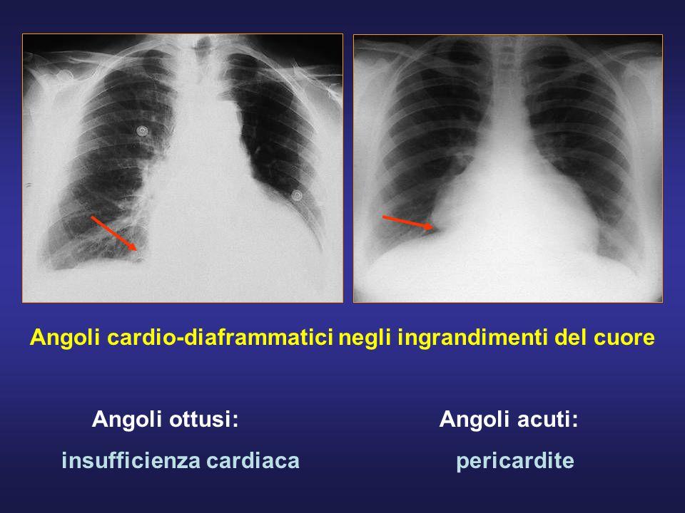 Angoli cardio-diaframmatici negli ingrandimenti del cuore